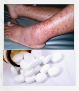 contraindicaciones del ciprofloxacino