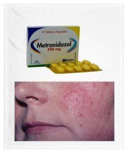 para que es metronidazol