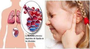 cefalexina efectos secundarios